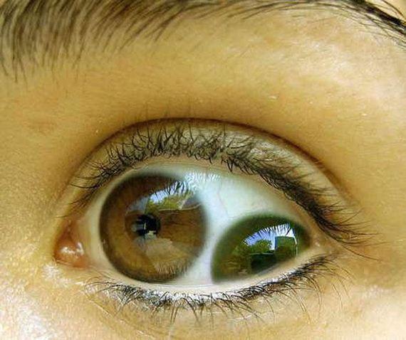 13 - Usa ka mata, duhay kalimutaw - Weird and Extreme