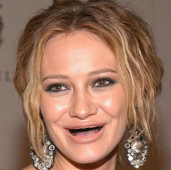 actresses-without-teeth