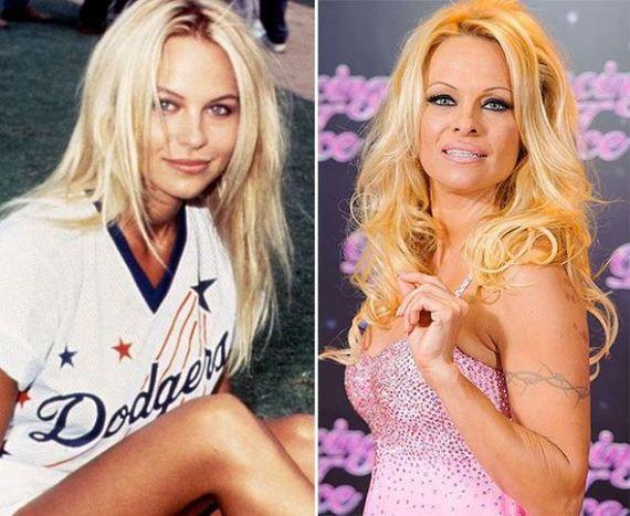 Pamela Anderson Now TIL Pamela Ande...