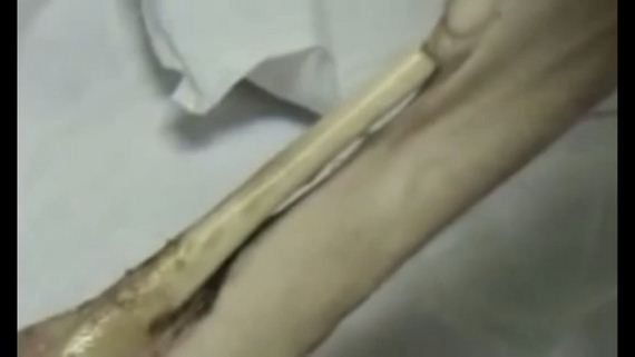 Flesh-Eating-Drug-Krokodil