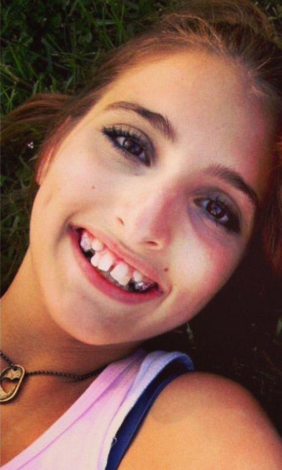 широкая челюсть у девушек фото