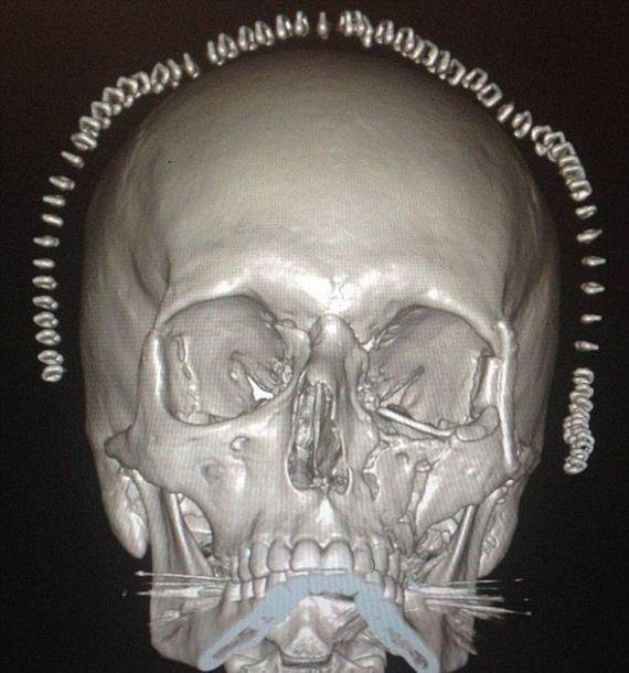 printed_skull