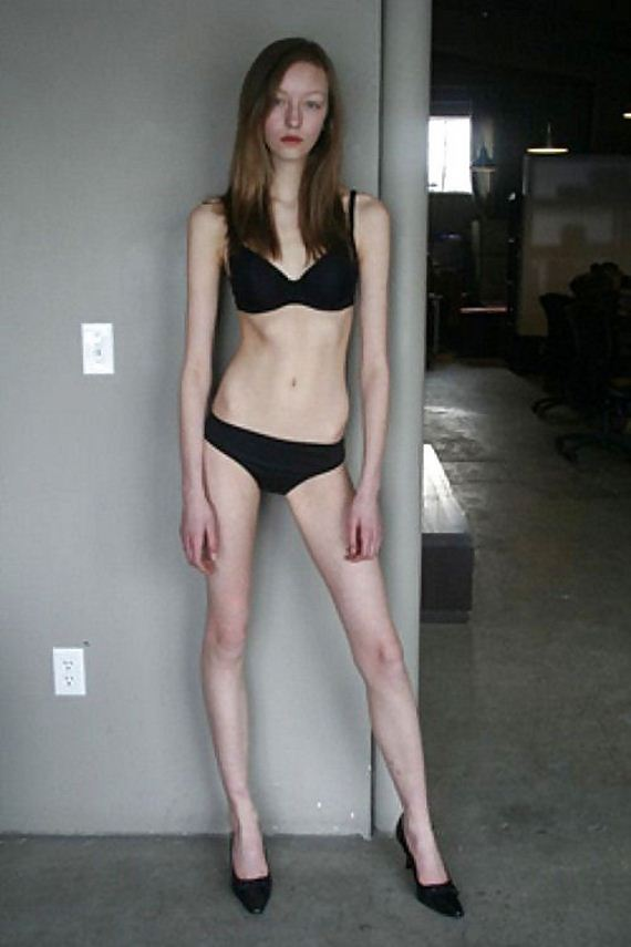 skinny_not_sexy