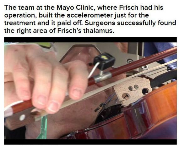 violin_during_his_own_brain_surgery