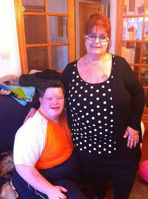 Man-Down-Syndrome