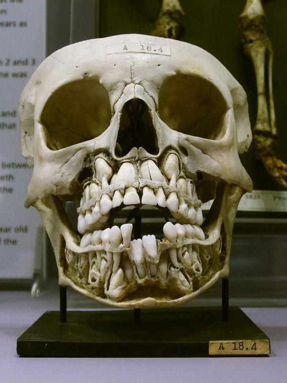Skull-Looks