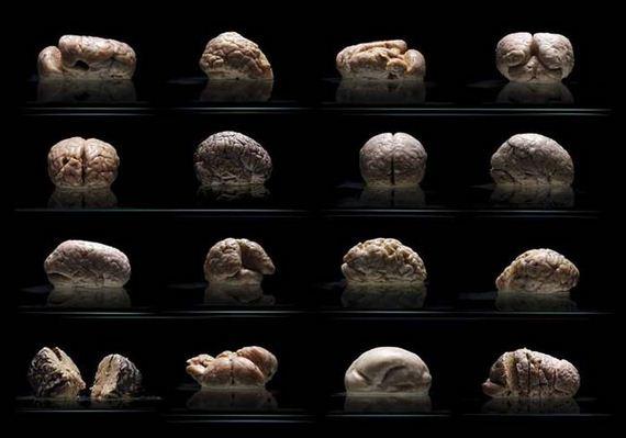 human-brains-morbidly-beautiful