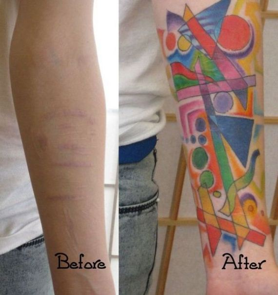 scars_cover_up