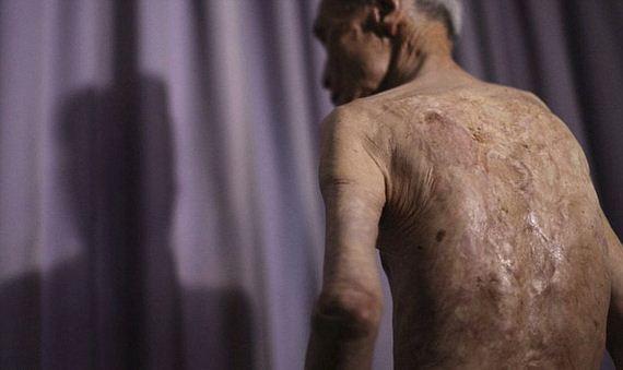 scars_nuclear_war