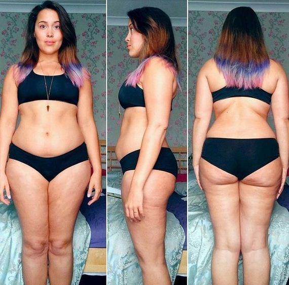 anorexia_stouter
