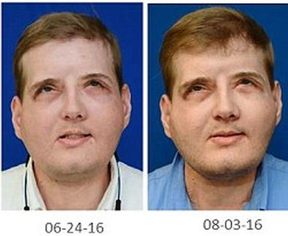 face_transplant