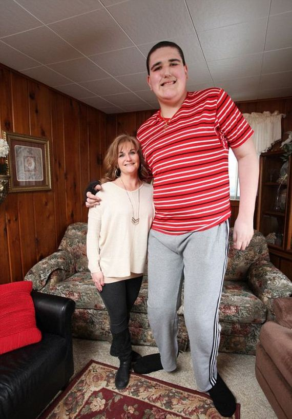 teenager_gigantism