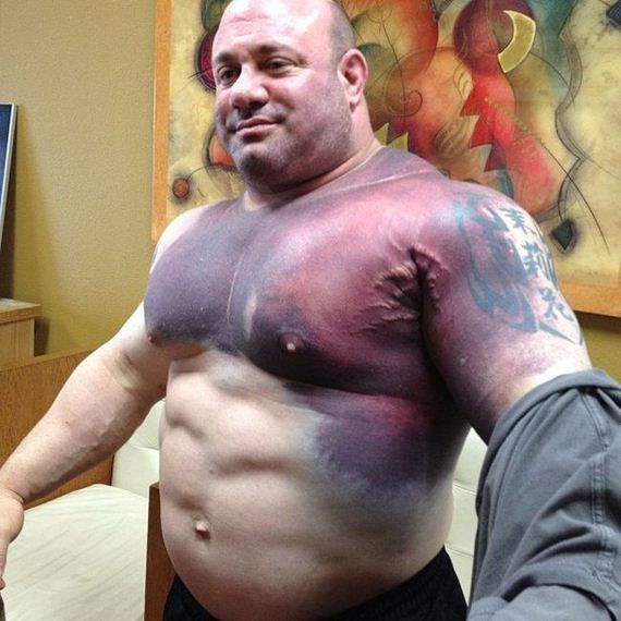 steroid abuse in major league sports