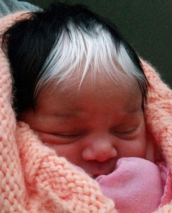 01-hair_poliosis_baby_girl