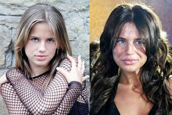 The Worst Plastic Surgery Disasters Of All Time Barnorama