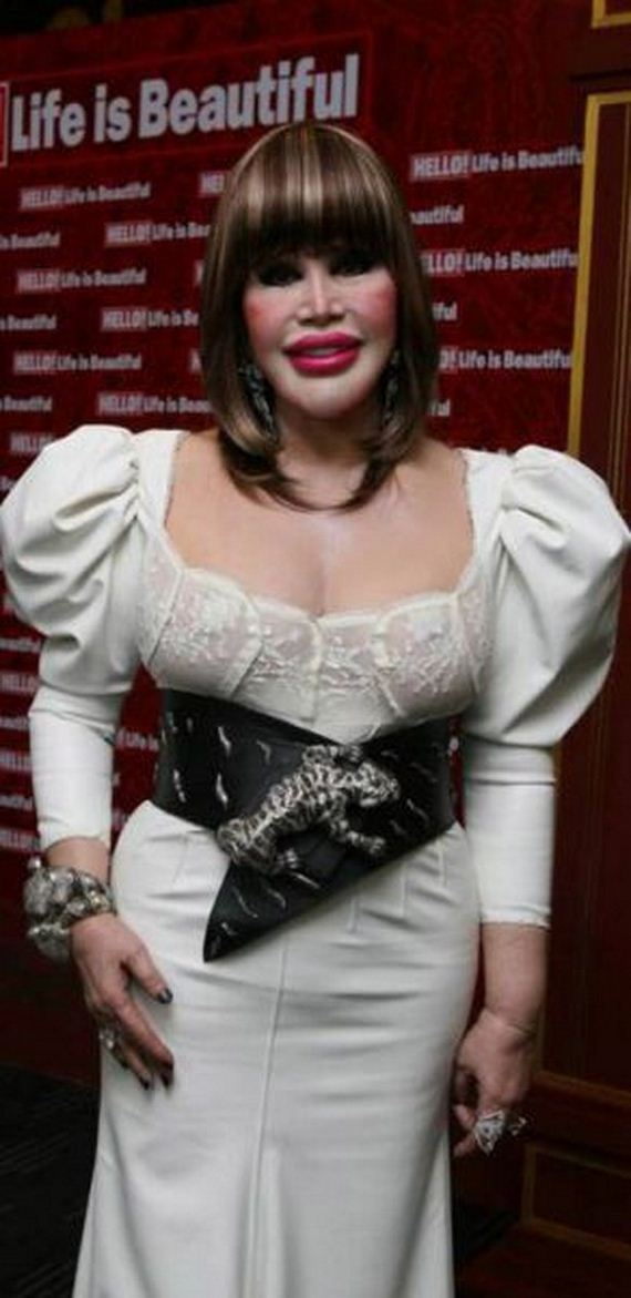 The Worst Plastic Surgery Disasters Of All Time