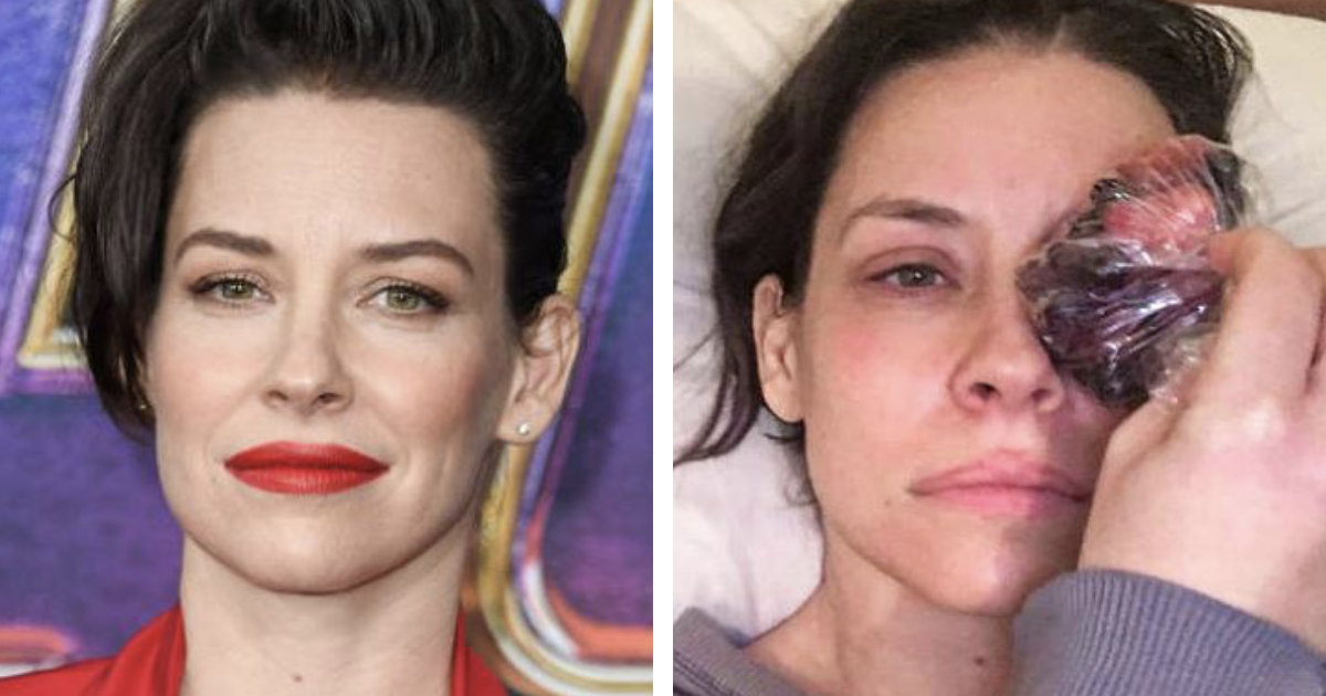 19 Female Celebs Who Don't Hide What's Under Their Makeup
