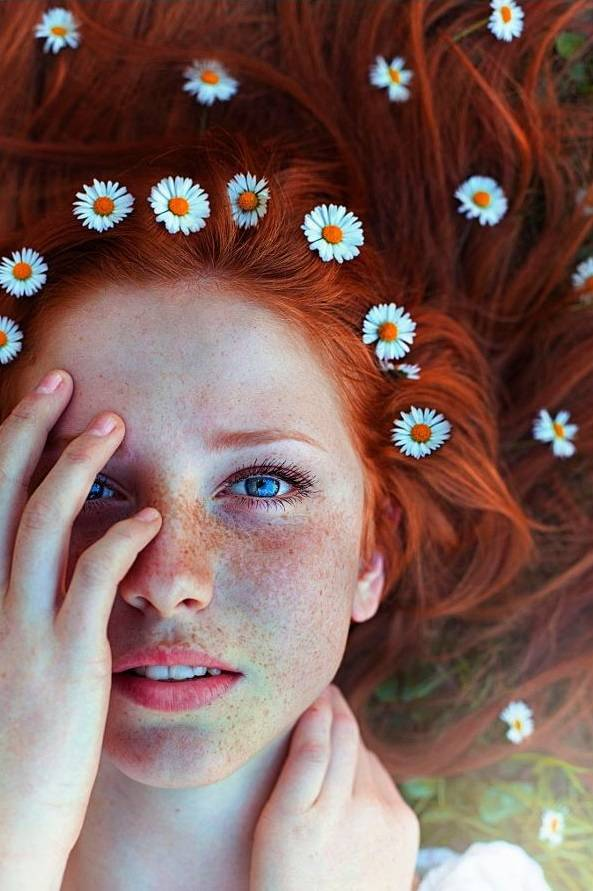 29 Beautiful Girls With Freckles - Barnorama
