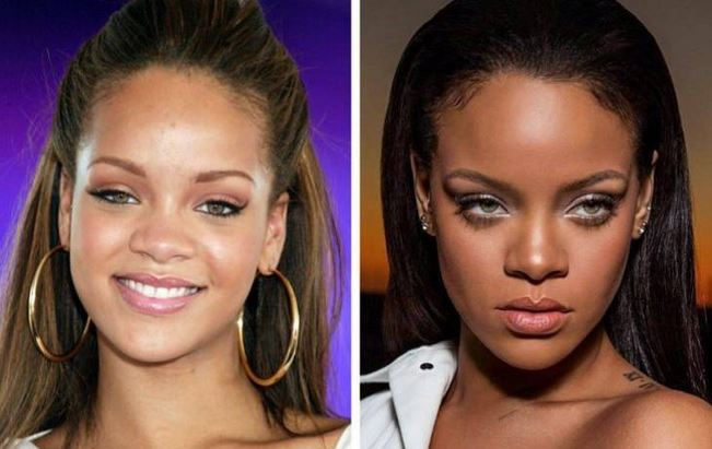 17 Famous People Who Got Rid Of Their Chubby Cheeks